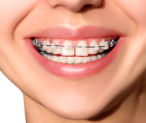 resize-Ceramic-Braces