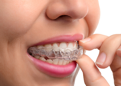 clear aligners image
