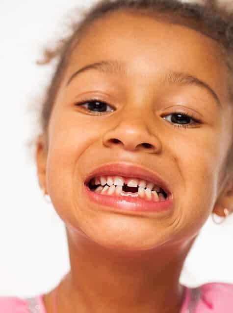Kid with missing teeth