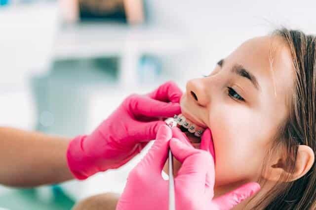 loose-dental-brackets