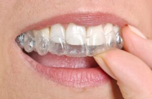 woman puttin in invisible braces