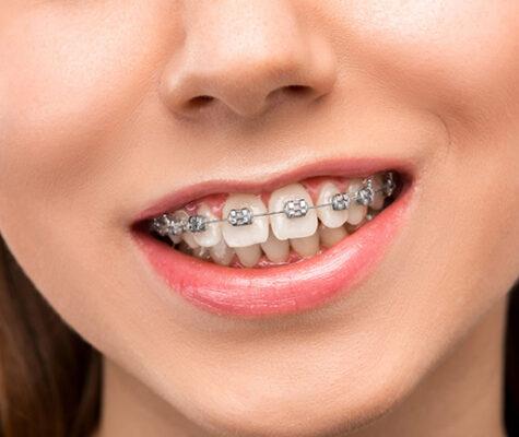 metal-teeth-braces